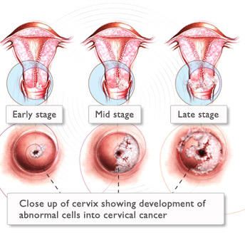 What happens if my cervical cancer is left untreated?