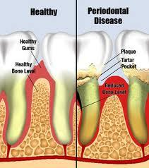 How do you get rid of inflamed gums?