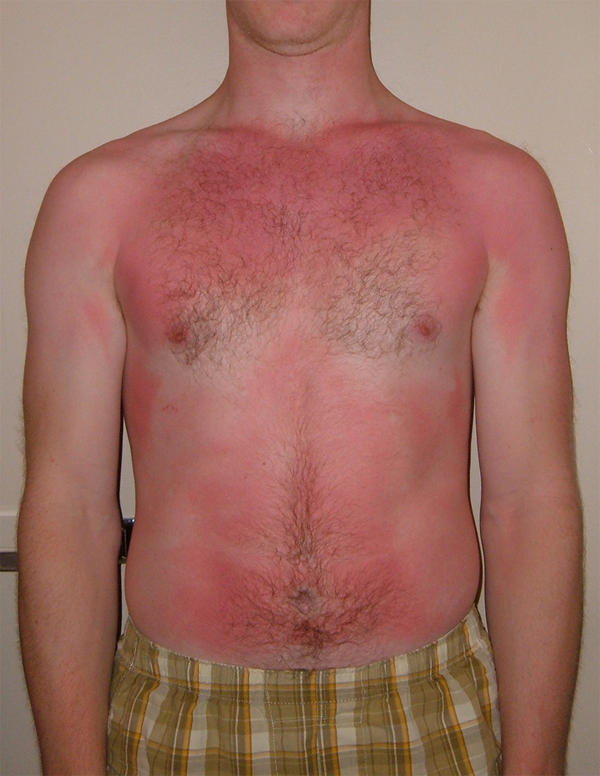 I have numbness in my hands after sunbed and am takin doxycycline?