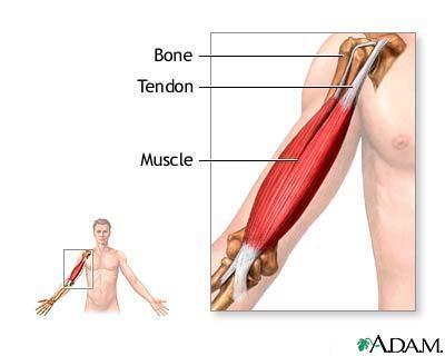 Multiple tendon pain. Ra and spa arthritides ruled out. Any ideas?