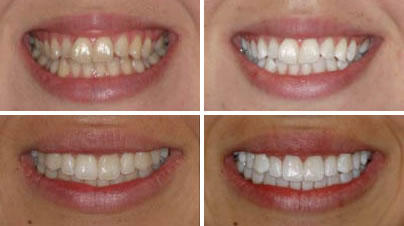 I heard people back in the day that used baking soda to whiten their teeth. Does this work?