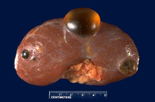 Ultz shows left renal cyst 9mm four mos ago. Today its sm cortical left cyst 0.72 x 0.84 in left inferior. Does it shrinked? Pls help