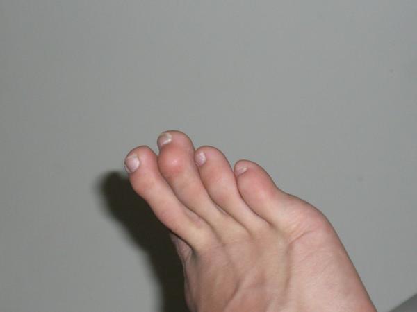 How do I resolve a swollen toe?