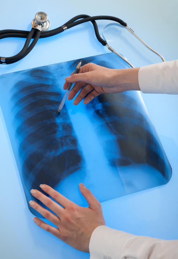 Is calcification in right apex (lungs)  requred treatment or not and how to remove the marks which reflect in x-ray.