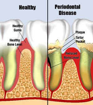Symptoms of gum disease that indicate early stages of periodontal disease?