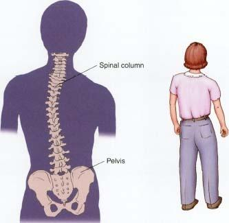Little scoliosis can cause muscle spasms spread in the whole body?  Or it affects only some group of muscles?