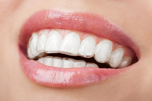 Been using crest white strips too much and i'm worried they might be bad for my teeth?