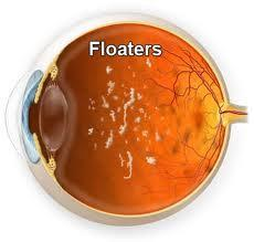 What are the causes of eye floaters?