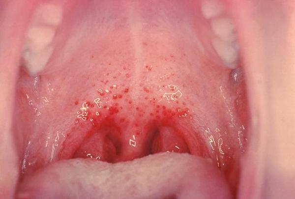 Cause of inflammation of soft palate?