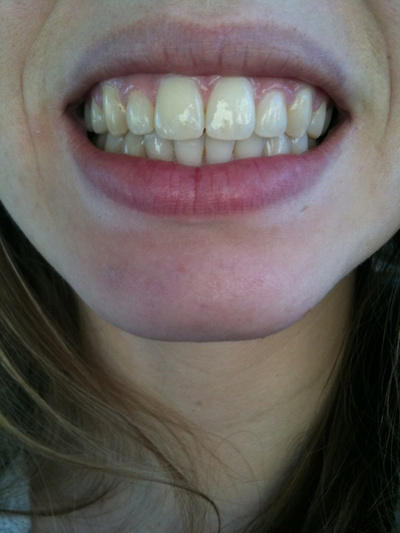 Removing the gap between the front two upper teeth by braces or special technique at 44 age-female will the braces work for a 44 year old female to fill the gap between the front two teeth if not what technique is good other than the filling the gap with