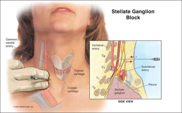 Is a stellate ganglion block appropriate for  postherpetic neuralgia along the trigeminal nerve.