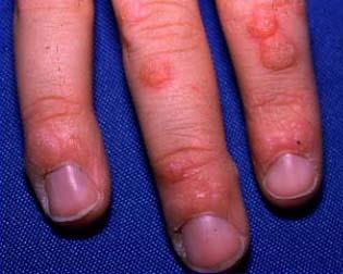 Can you pass warts onto people if you do not have any. Even though you were in contact with them. Can you pass them on by holding hands etc?