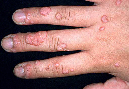 Can you pass warts onto people if you do not have any. Even though you were in contact with them. Can you pass them on by holding hands. Using same ti?
