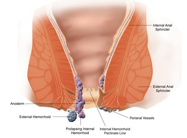 Can an anal fissure or hemorrhoids cause swollen lymph nodes in the groin?