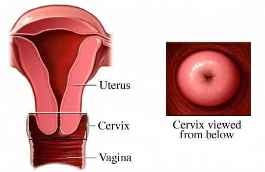 Hidden cervix after leep difficult to do smear test?