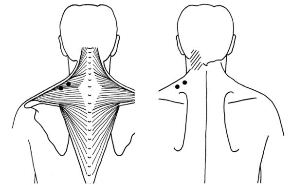 Pain in lower neck between trapezoids from shrugging. What should I do?