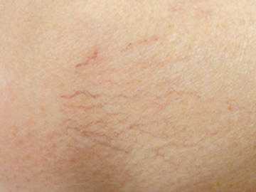 Horse chestnut seed extract in pill form for spider veins?