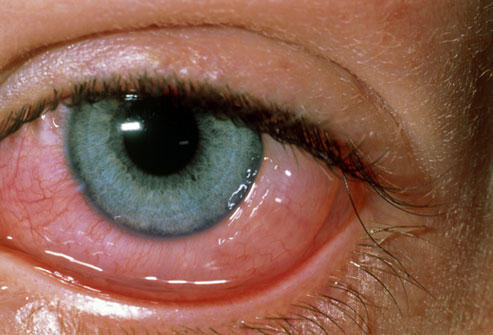How are the symptoms of pink eye and those of eye allergies distinguished from each other?