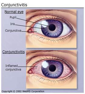 Is using the same pair of contacts after pink eye / conjunctivitis considered safe?