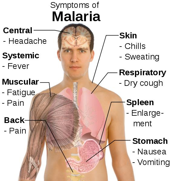 What are the possible ways to diagnose malaria?