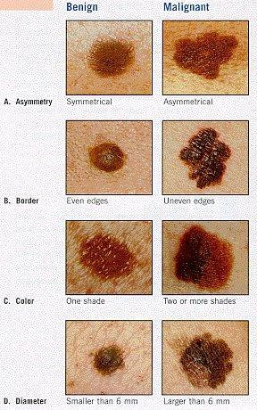 Which symptom did you have of melanoma?