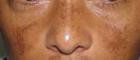 Where does melasma most commonly develop? What areas of the body does melasma most often develop? .
