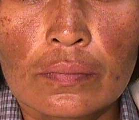 Can men ever get melasma or just women? Can only women get melasma or have some men been reported as having developed the condition as well?