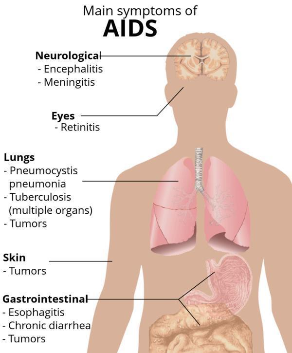Can you explain where did the first case get the aids/hiv get it from?