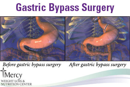 Can you please tell me some good ways to get the process for having gastric bypass going?