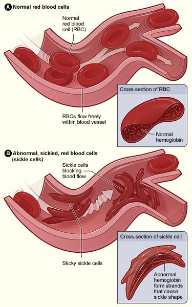 Can sickle cell trait affect the white blood cells?