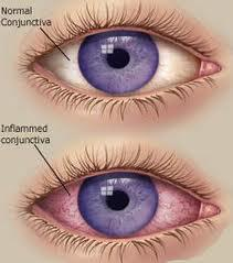 What should you do when you have conjunctivitis or pink eye?