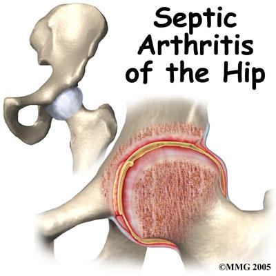 What is the likelihood of septic arthritis returning?