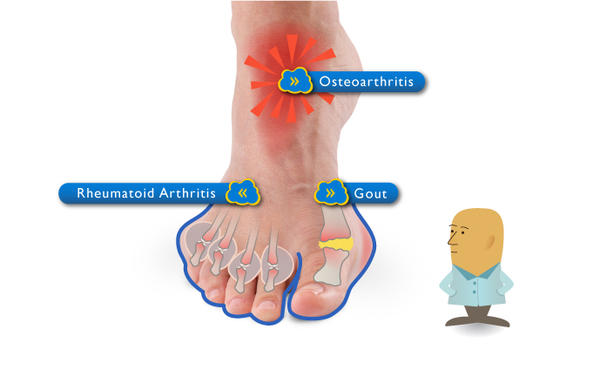 What are powerful ways to reduce arthritis pain in foot?