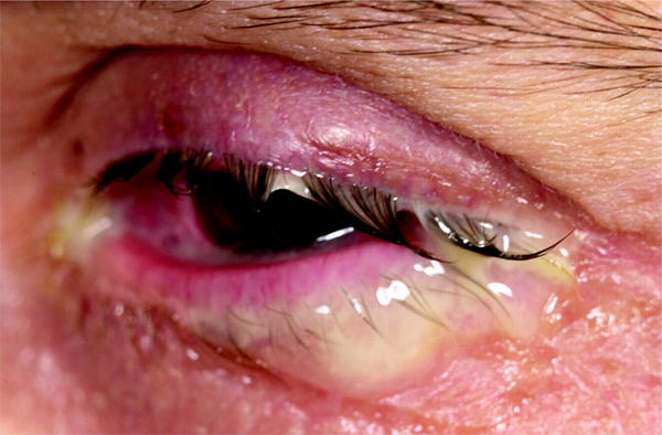 How to treat eye infection?