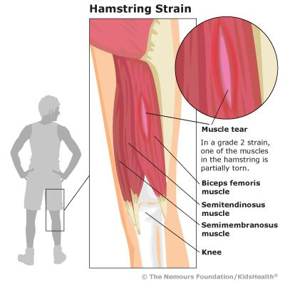 rehab plan torn hamstring You may start the first 4 exercises right away make sure you do not feel any  sharp pain you should feel only a mild discomfort in the back of your thigh when .
