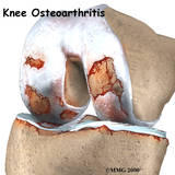 Can symptoms of meniscus tear be confused with knee arthritis?