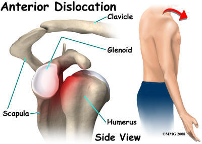 Usually how bad is the pain after your shoulder dislocation gets put back into place?
