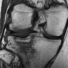 Docs can you explain what is a compression fracture of the knee?