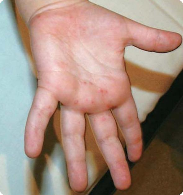 Is it possible to contract hand foot & mouth disease from dogs?