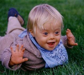 What is the probability of having a child with downs syndrome?
