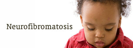 What are types of neurofibromatosis besides acoustic neurofibromatosis?
