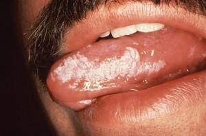 Could epstein barr virus cause mouth sores?
