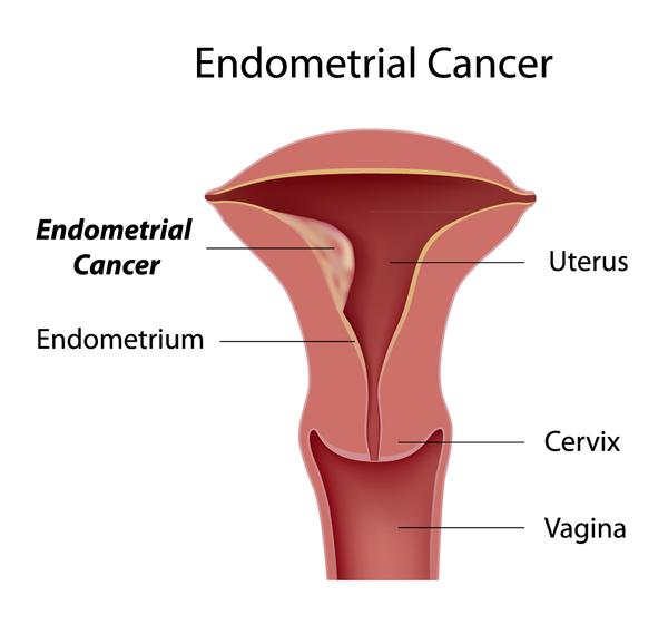 Are the common symptoms of endometrial cancer bleeding in menopause?