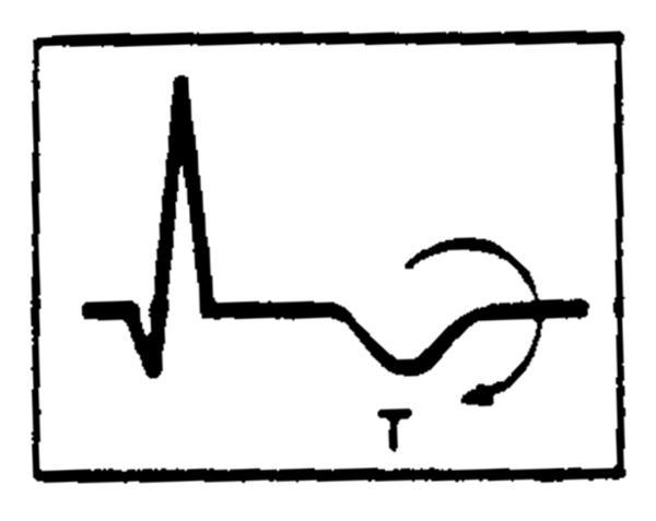 What will happen if i smoke marijuana with an inverted t wave? What exactly is an inverted t wave?