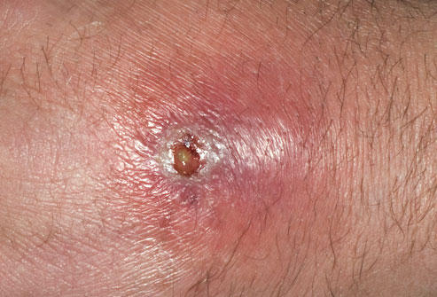 I have an abscess on my arm. What's the best thing I can do to make it go away?
