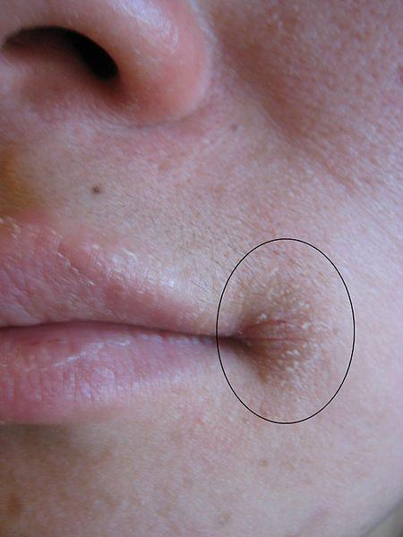My doctors say that I have perioral dermatitis, but I have cracks of corners of lips, and then it spread around lips. Can it be cheilitis?