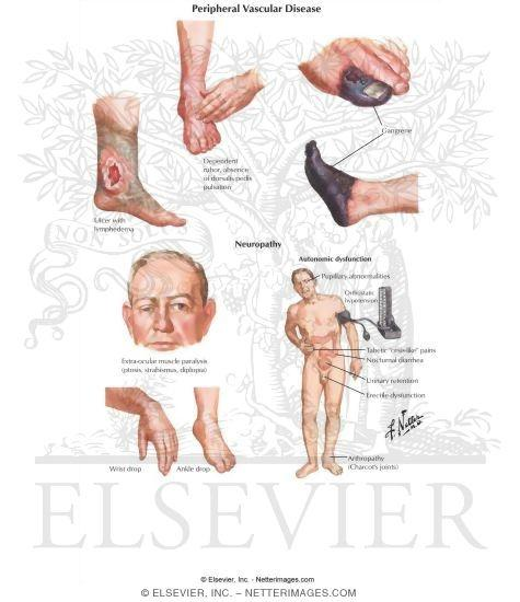 Can there be anyone who has had neuropathy completely recovered?