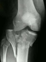 How is healing from shattered knee surgery?