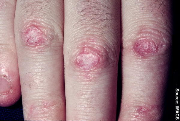 Are there any means of getting rid of scars left by eczema?