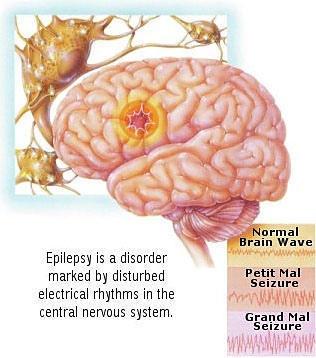 Could there be a connection between epilepsy and mild mental illness?